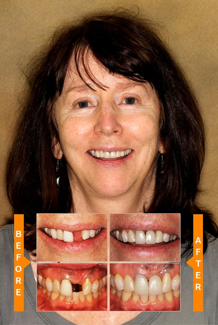 Our Patient Smile Gallery
